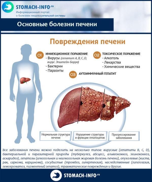 Основные болезни печени