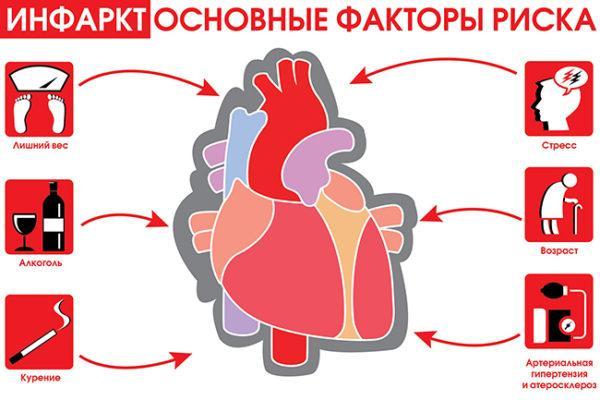 Основные факторы риска инфаркта