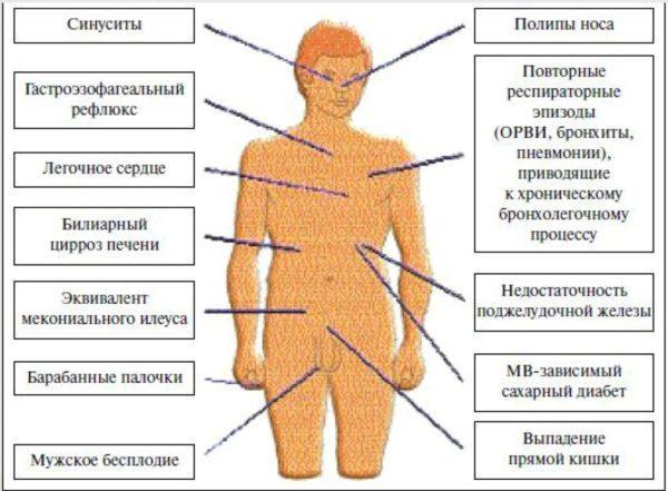Основные признаки муковисцидоза
