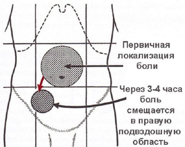 Первичная боль при воспалении аппендицита