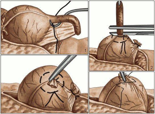 Полостное оперативное вмешательство при аппендиците