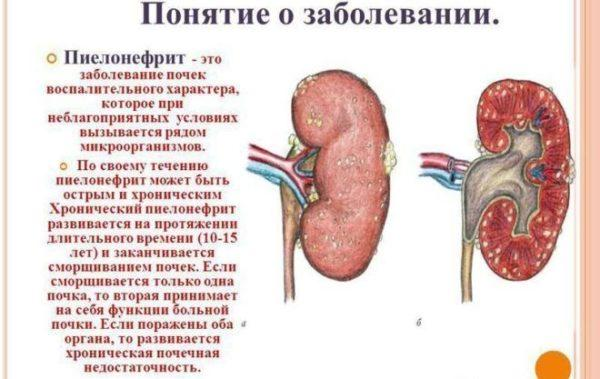 Понятие о пиелонефрите