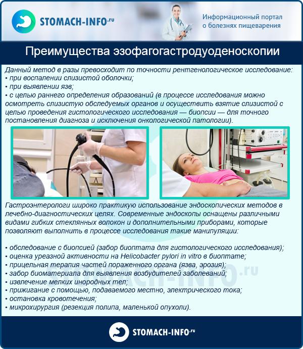 Преимущества эзофагогастродуоденоскопии