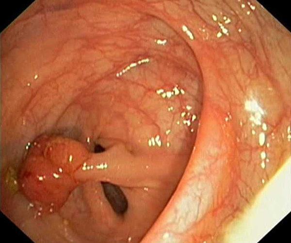 Преинвазивный рак прямой кишки (стадия 0)