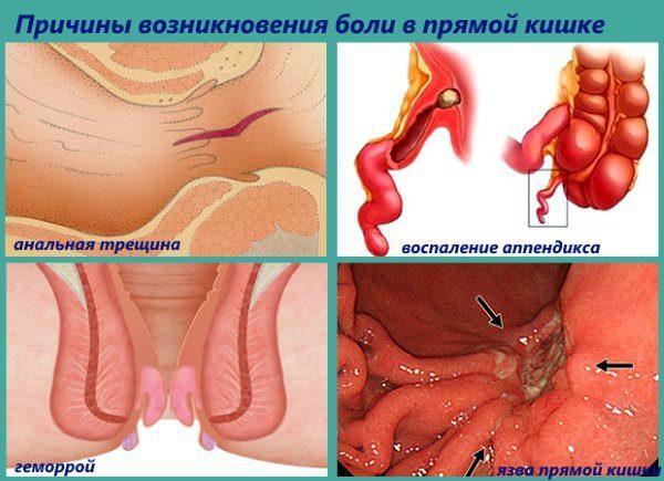 Причины болей в прямой кишке