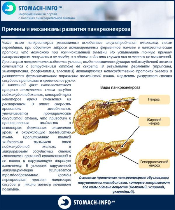 Причины и механизмы развития панкреонекроза