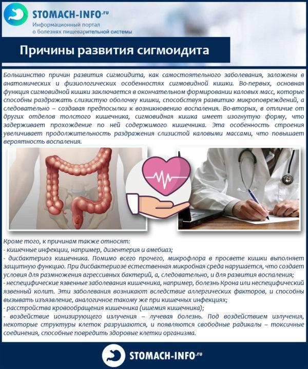 Причины развития сигмоидита