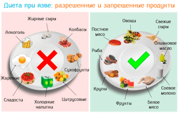 Продукты, рекомендуемые при язвенной болезни