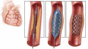 Процедура ангиопластики и сканирования коронарных артерий