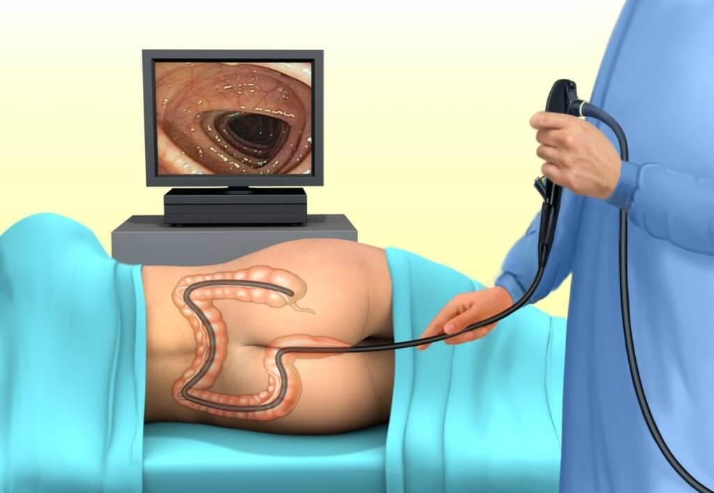 Можно ли посмотреть простату при колоноскопии