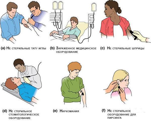 Пути инфицирования гепатитом С