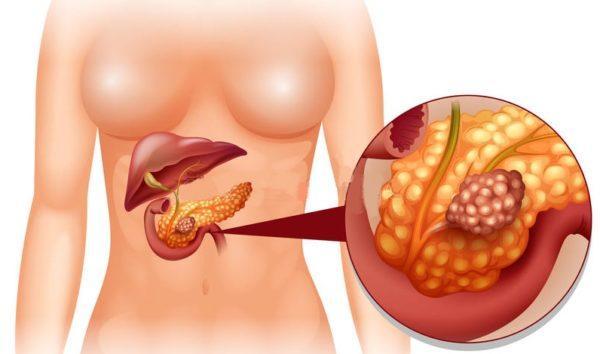 Рак панкреаса
