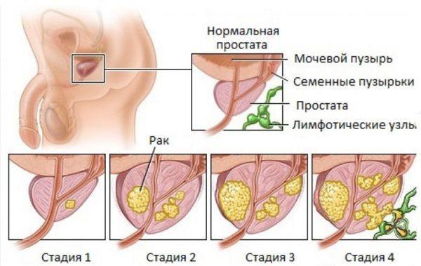 Рак простаты