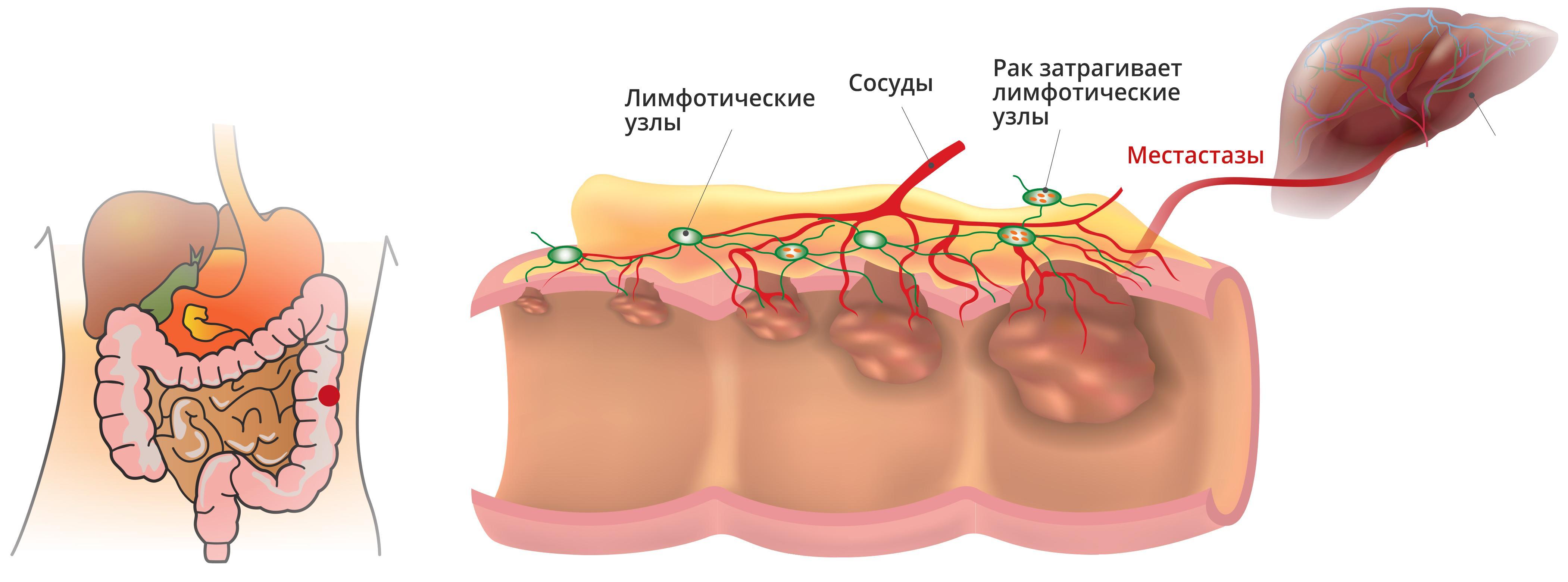 Болезни прямой кишки и их симптомы