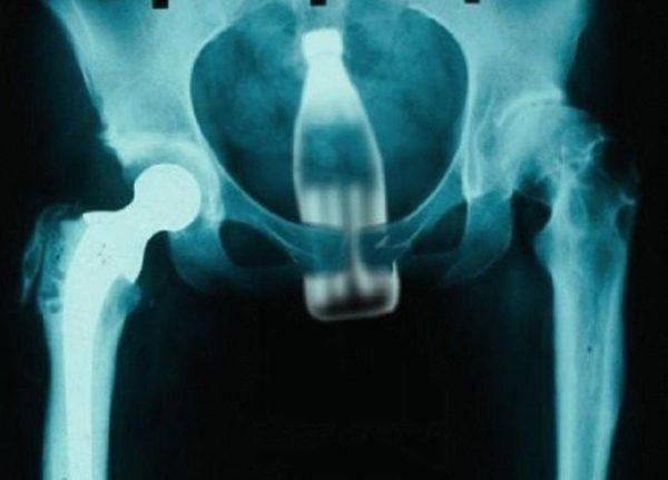Разрыв кишки в результате сексуальных извращений