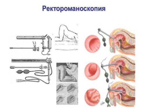 Ректороманоскопия