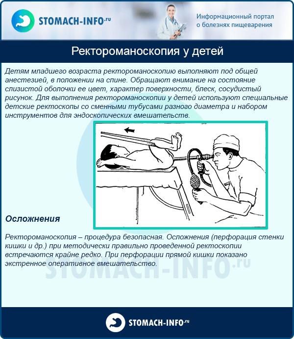 Ректороманоскопия у детей