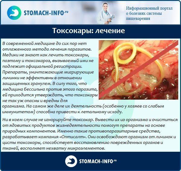 Токсокары: лечение