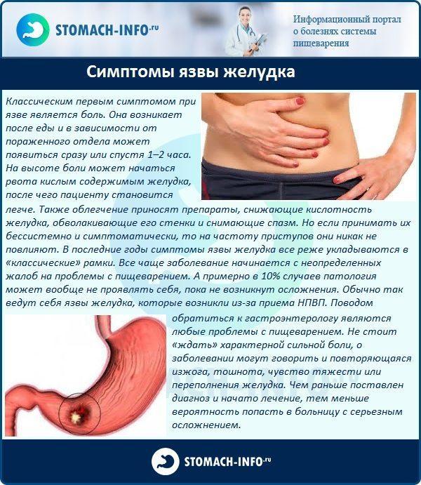 Симптомы язвы желудка