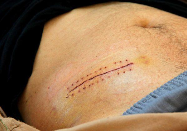 Шрам после аппендэктомии