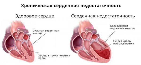 Сердце при хронической сердечной недостаточности