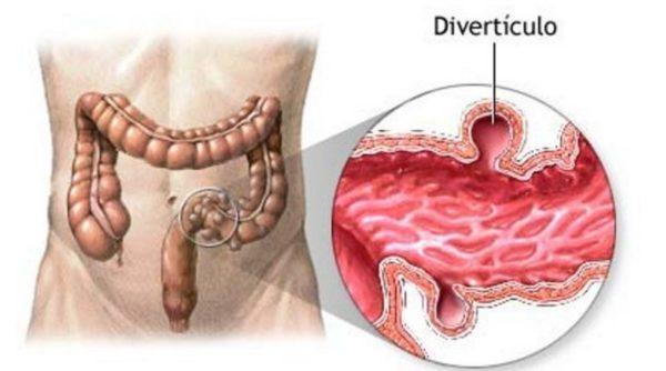 Схема дивертикулеза кишечника