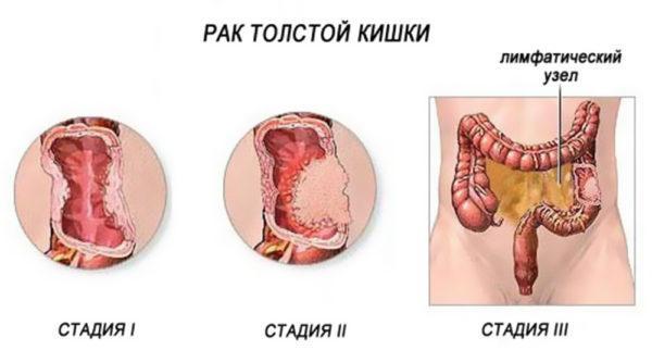 Схематичное изображение рака толстой кишки