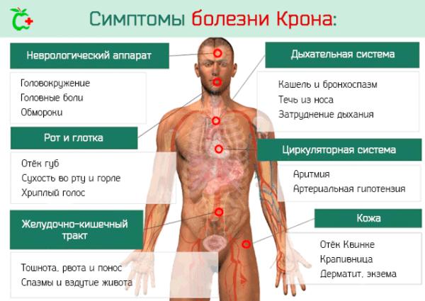 Симптомы болезни Крона и воспаления кишечника