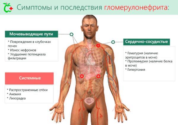 Симптомы и последствия гломерулонефрита