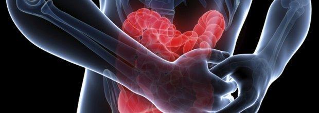 Что делать при воспалении кишечника