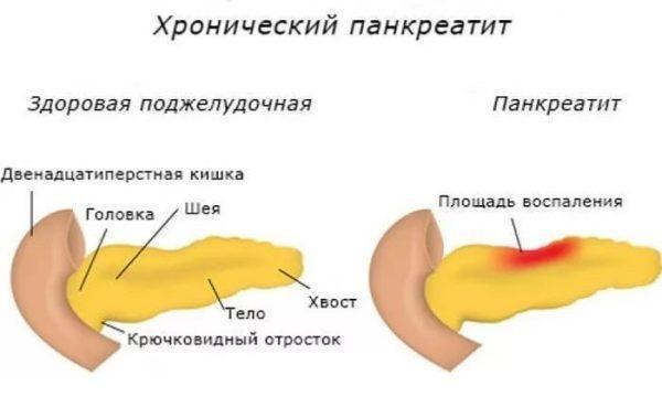 Среди всех заболеваний органов ЖКТ частота хронического панкреатита составляет от 5,1 до 9%