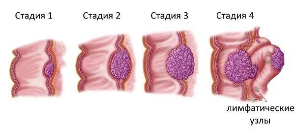 Стадии развития рака кишечника
