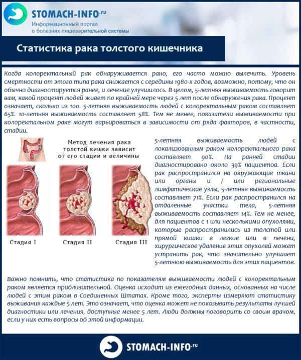 Статистика рака толстого кишечника