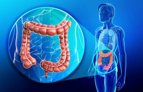Синдром «ленивой» толстой кишки – уменьшение сокращений толстой кишки или снижение чувствительности прямой кишки к присутствию в ней кала, что приводит к хроническому запору