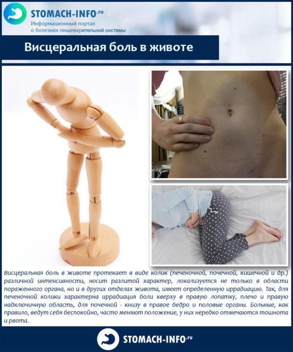 Висцеральная боль в животе