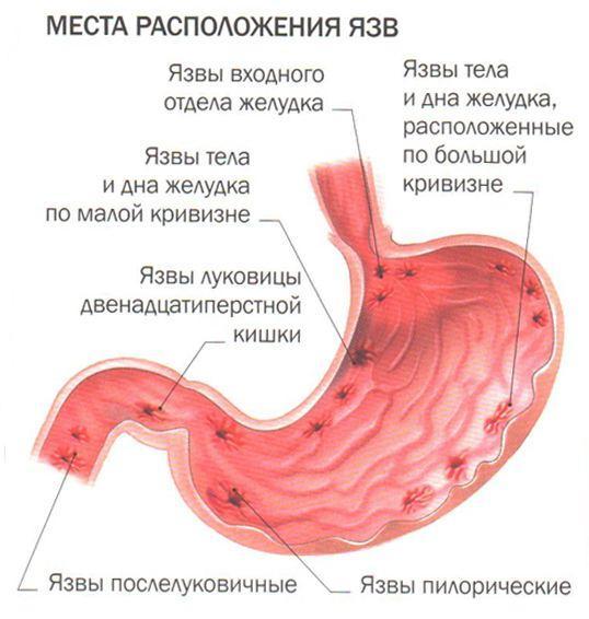 Возможные места локализации язв желудка