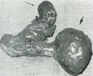 Врождённая аномалия поджелудочной железы