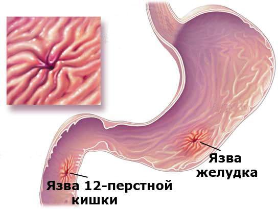 Язва 12-перстной кишки и язва желудка