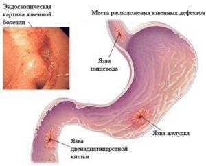 Язвенные поражения желудка и двенадцатиперстной кишки
