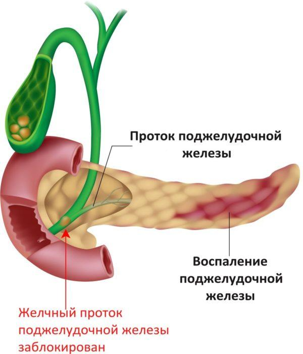Желчный проток поджелудочной железы заблокирован