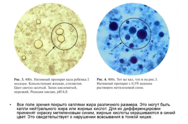 Жирные кислоты под микроскопом