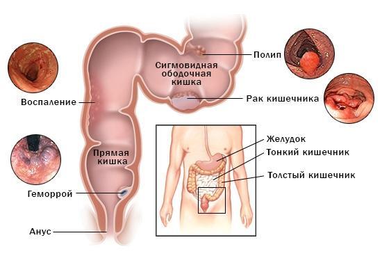 Заболевания, которые можно выявить с помощью РРС