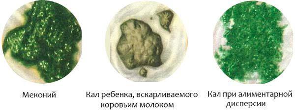 Зелёный кал у грудничка