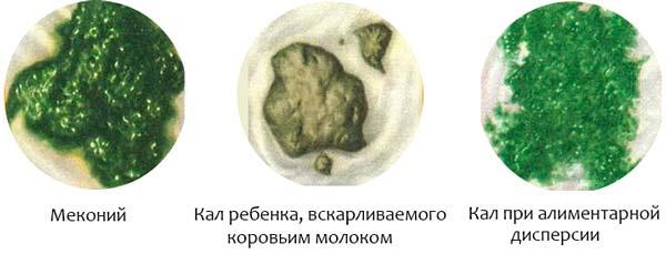 Врач-педиатр про причины зеленого стула у грудничка