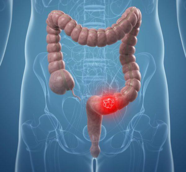 Рак толстого кишечника: признаки и симптомы