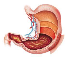 2. Гастрит – воспаление слизистой оболочки желудка без изъязвления, но с дистрофическими изменениями