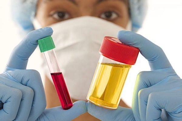 Врач выпишет направления на базовые анализы крови, кала и мочи
