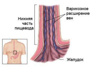 Варикозное расширение вен пищевода (обычно наблюдается при циррозе печени)