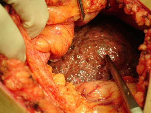 Цирроз печени: фото