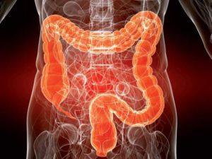 Нарушение проходимости кишечника